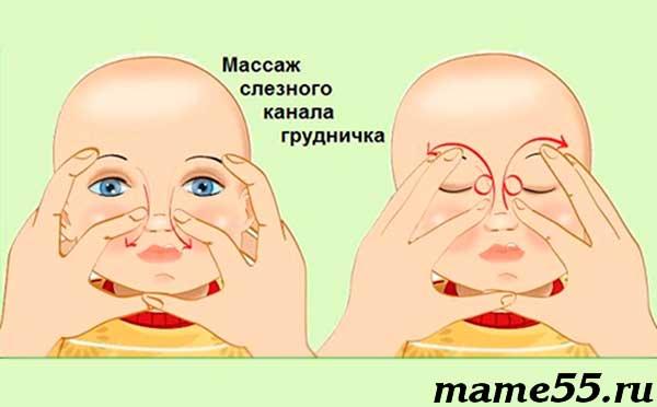 Как делать массаж глаза при дакриоцистите