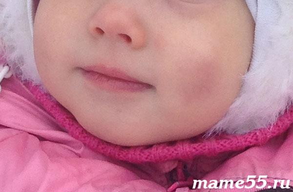 Синяки на щеках после обморожения